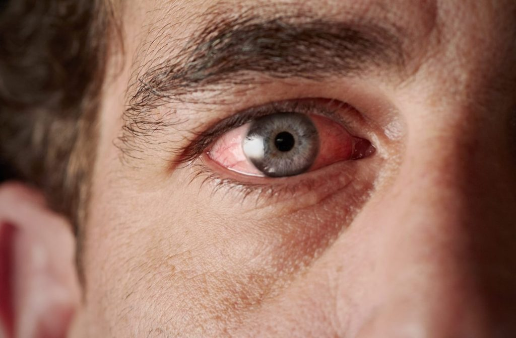 A man suffering from pink eye