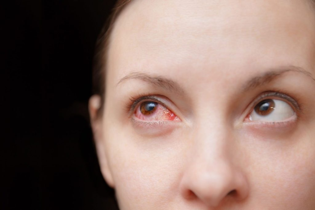 Woman's eye affected by conjunctivitis